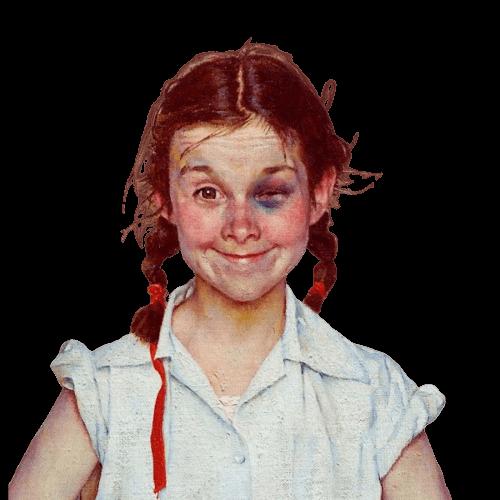 девочка с синяком